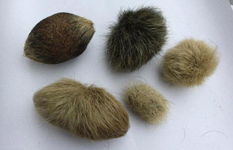 трихобезоары (комки шерсти)